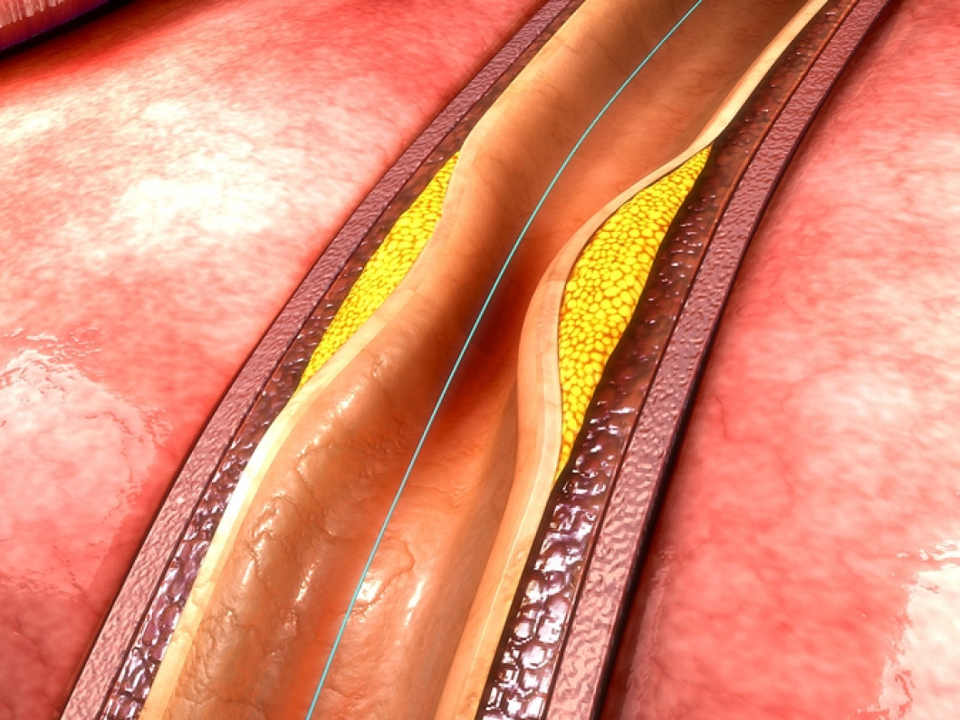 Resolve Issues With Your Arteries and Heart